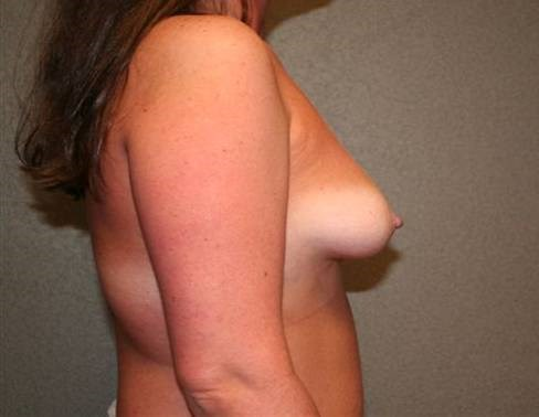 Breast Asymmetry Side Before