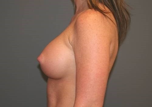 Breast Enhancement Side After