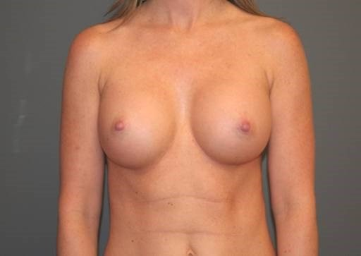 Breast Enhancement Front After