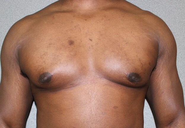 Gynecomastia After After