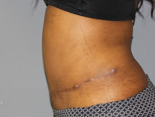 Tummy Tuck After After