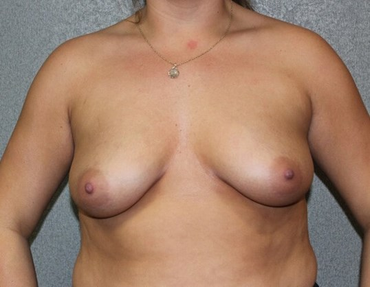 Breast Augmentation Before Before