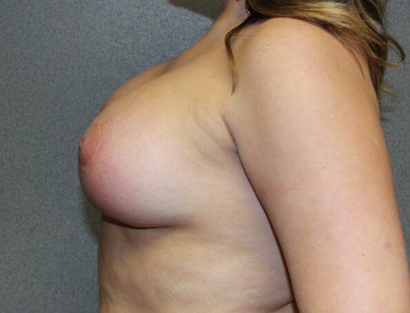 Breast Augmentation After After