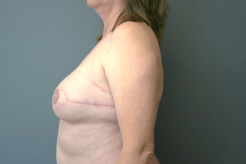 Breast Reconstruction Side View 2