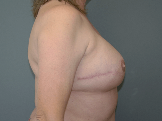 Breast Reconstruction Side View 1