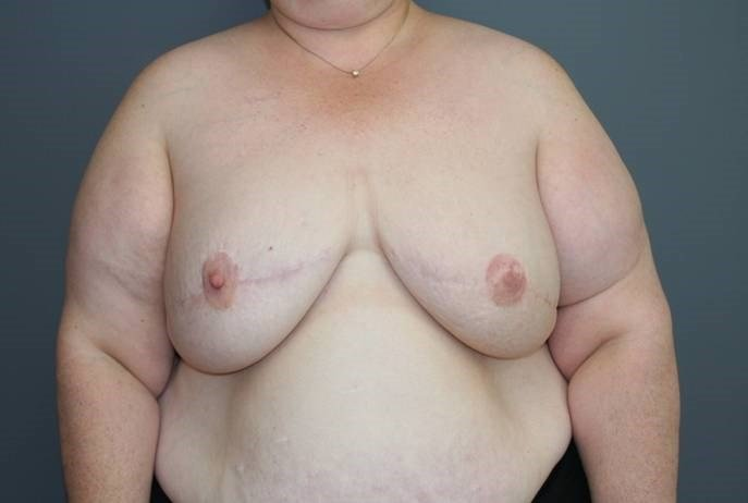 Breast Reconstruction After, Front