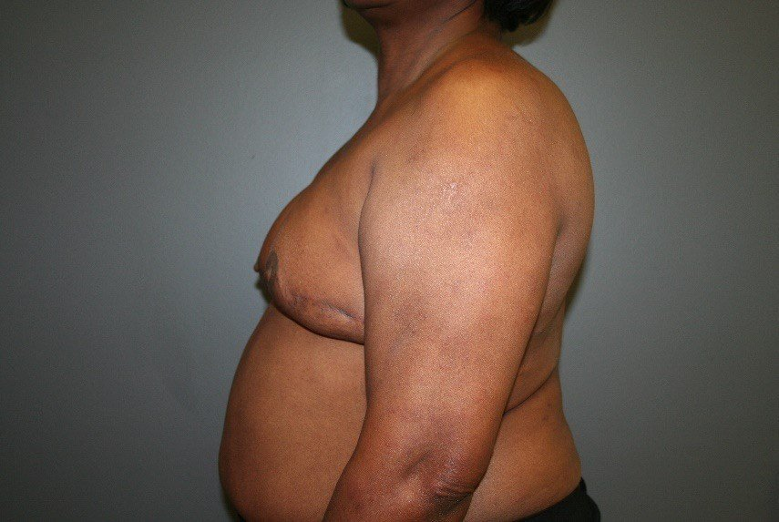 Breast Reconstruction After, Side
