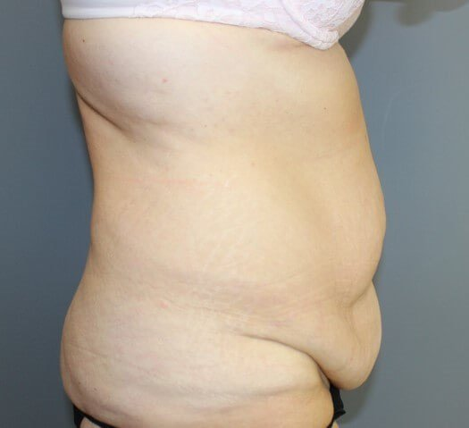 Abdominoplasty Side Before