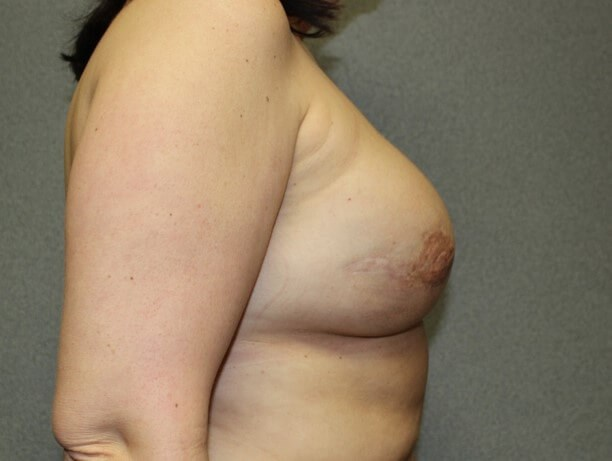 Breast Reconstruction Side After