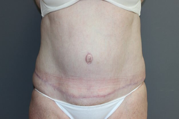 Tummy Tuck & Lipo Front After