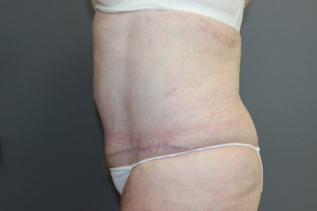 Tummy Tuck & Lipo Side After