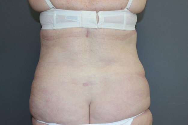 Tummy Tuck & Lipo Back After