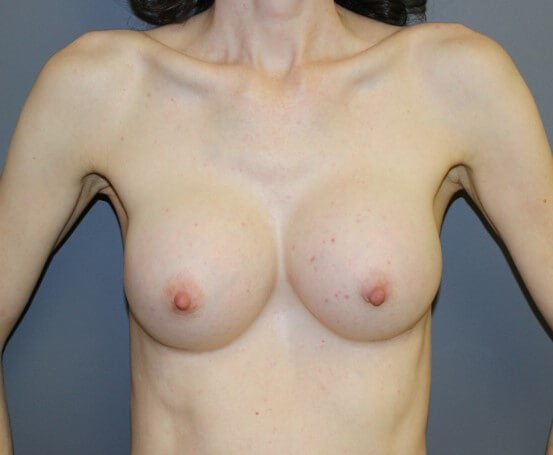 Breast Augmentation Front After