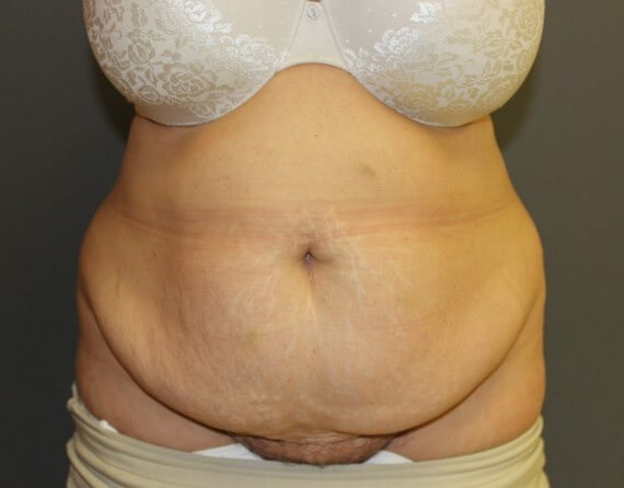 Abdominoplasty with Lipo Front Before
