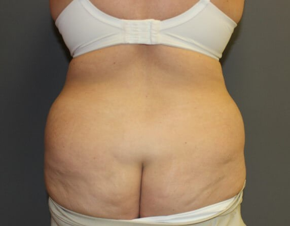 Abdominoplasty with Lipo Back Before