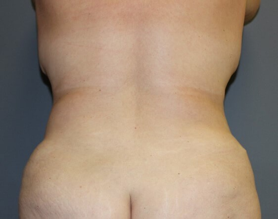 Abdominoplasty with Lipo Back After