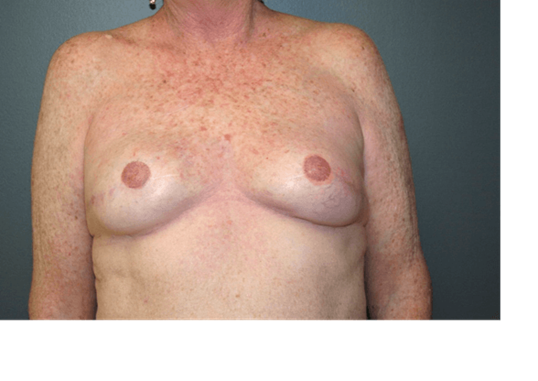 Breast Reconstruction Front After