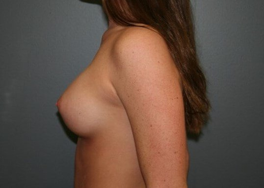 Breast Augmentation Side After