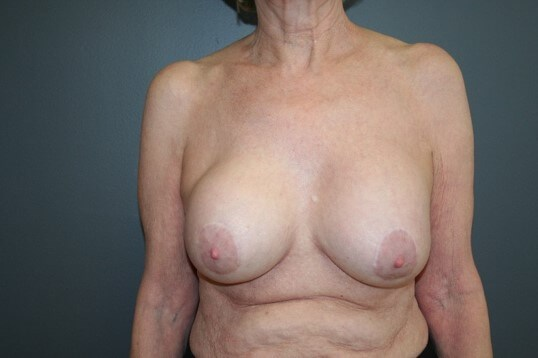 Breast Revision Front Before