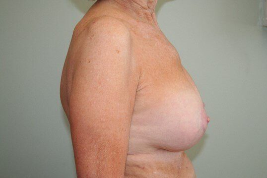 Breast Revision Side After