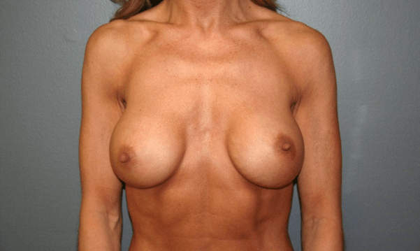 Breast Implant Exchange Front Before