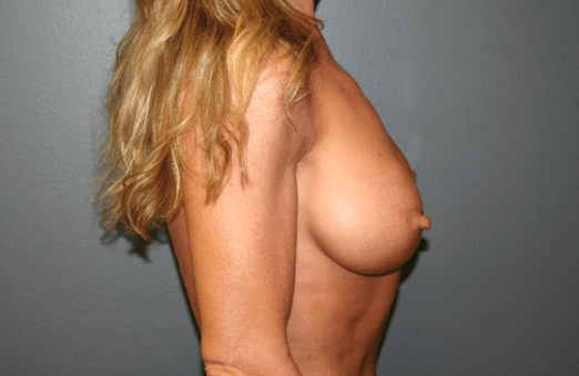 Breast Implant Exchange Side Before