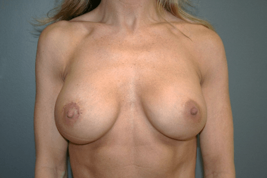 Breast Implant Exchange Front After