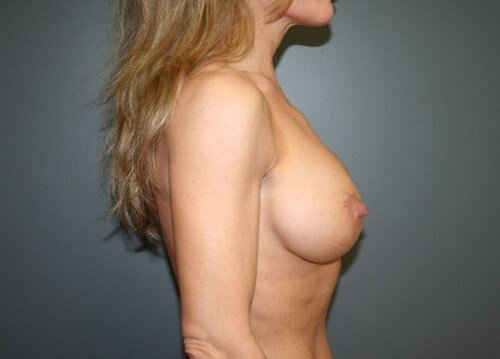 Breast Implant Exchange Side After