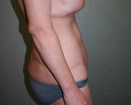Liposuction Side After