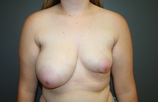 Breast Asymmetry Front Before