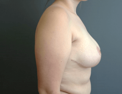 Breast Asymmetry Side After