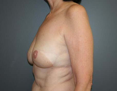 Breast Reconstruction Side Before