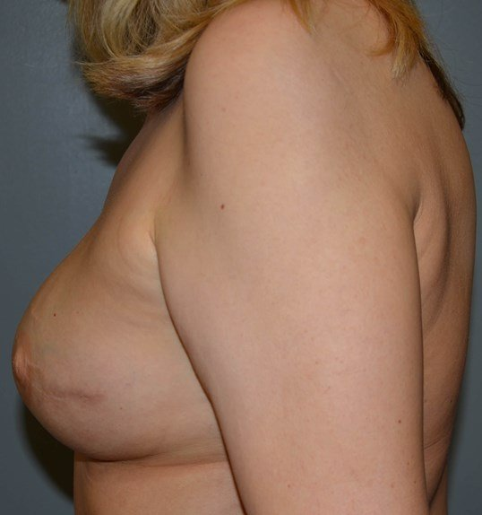 Breast Reconstuction After, Side