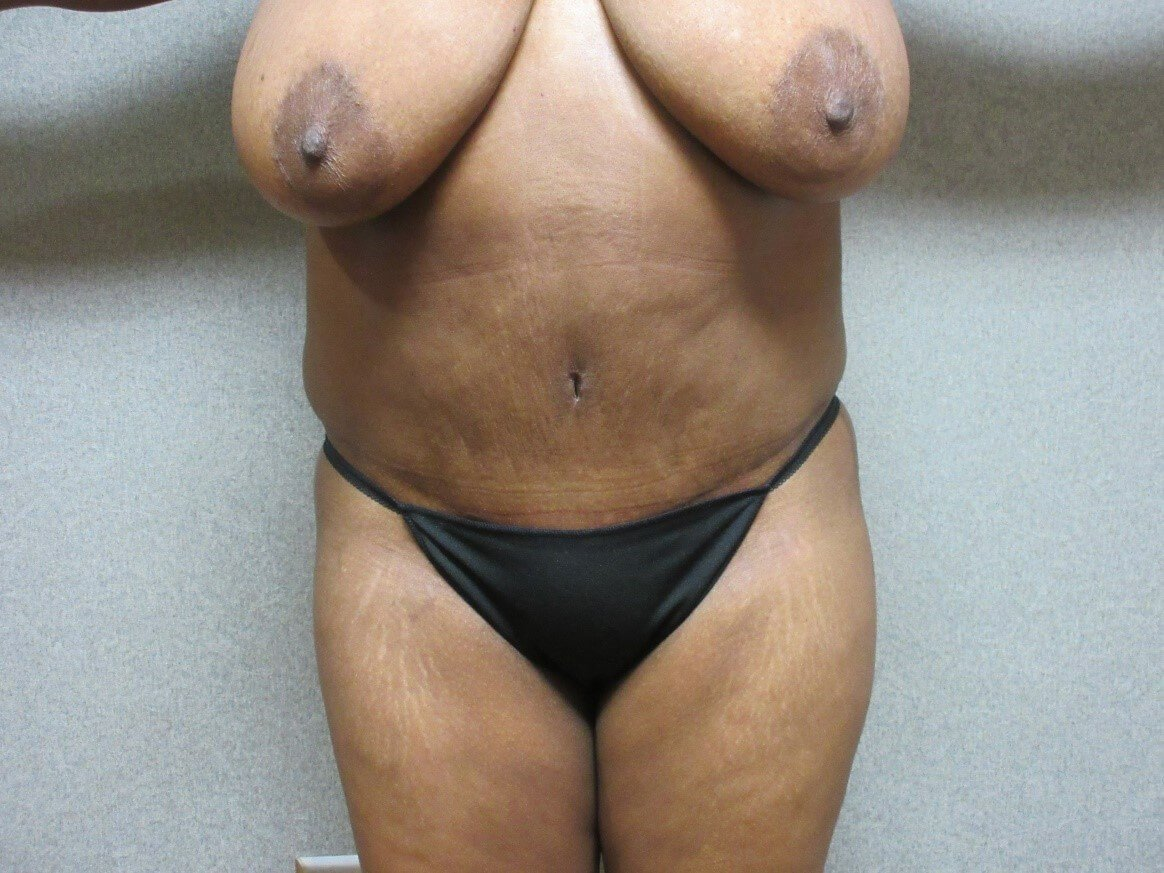 Abdominoplasty with Lipo Front After