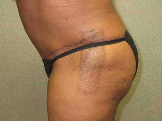 Abdominoplasty with Lipo Side After