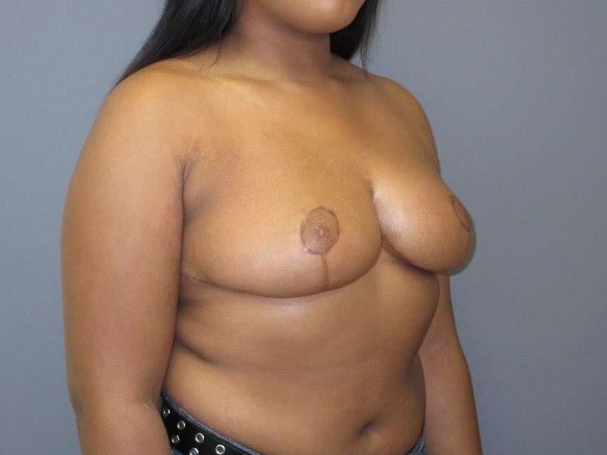 Breast Reduction Side After