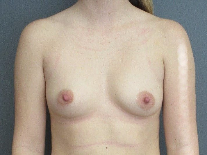 Breast Augmentation Front Before