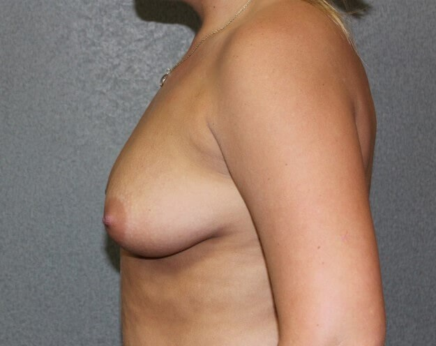 Breast Augmentation After Before