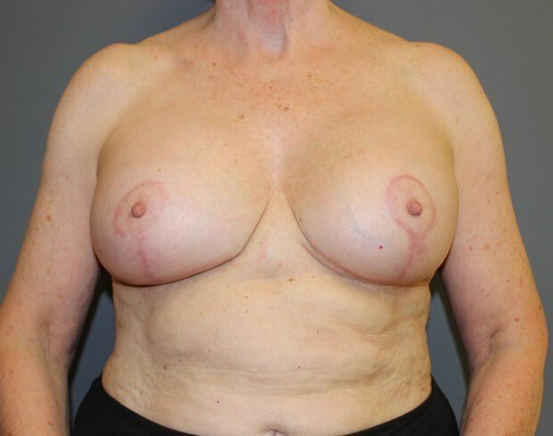 Breast Revision Front After