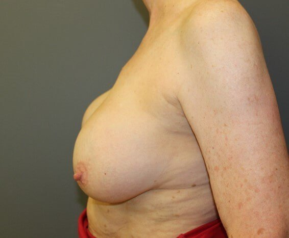 Breast Revision Side Before