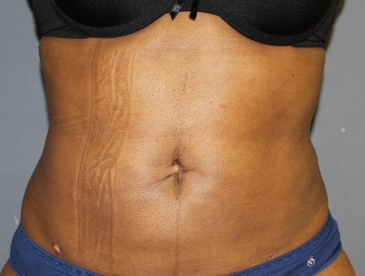 Liposuction Front After