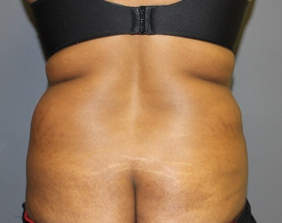 Abdominoplasty Back Before