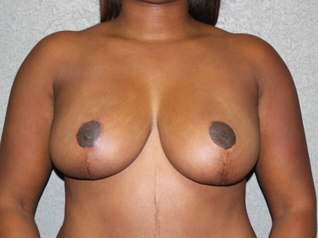 Breast Reduction Front After