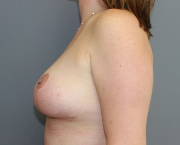 Breast Lift Side After