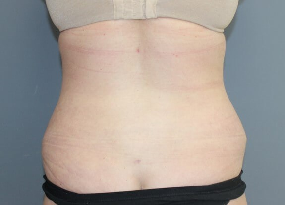 Abdominoplasty Back After
