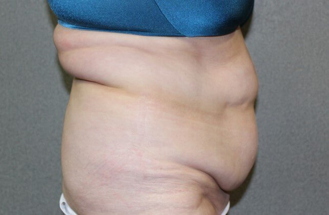 Tummy Tuck Side Before