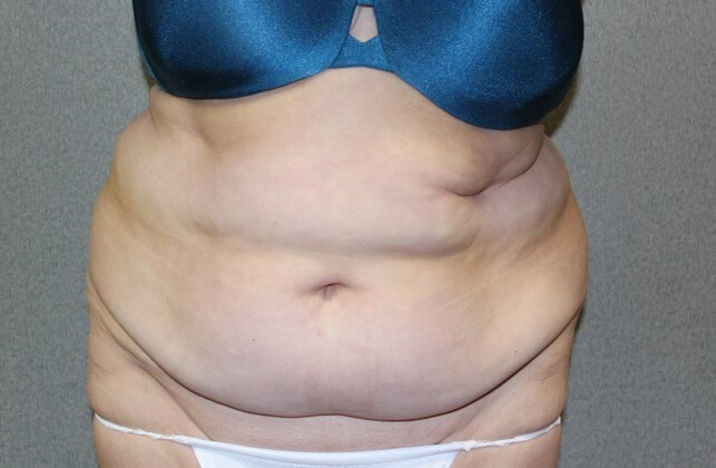 Tummy Tuck Front Before