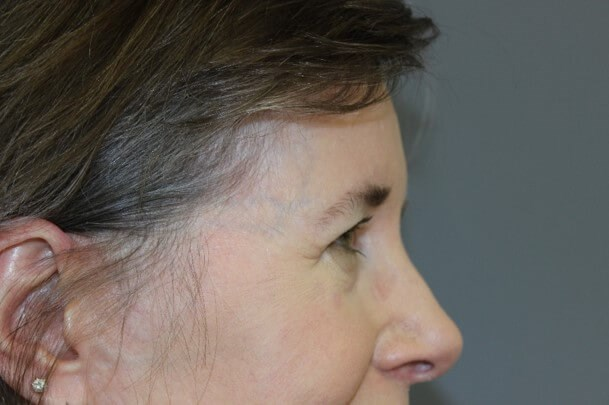 Endoscopic Brow Lift Side Before