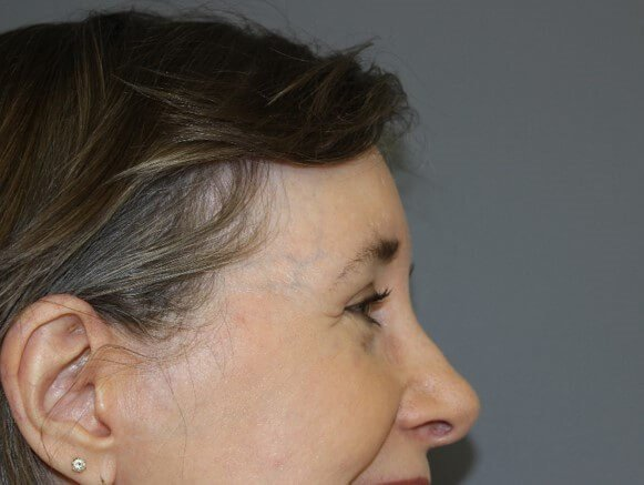 Endoscopic Brow Lift Side After