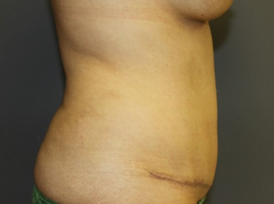 Tummy Tuck Side After